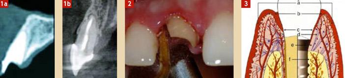 focus-clinic-edentation-gestion-tissus-et-implant-1