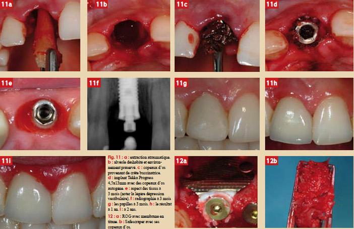 focus-clinic-edentation-gestion-tissus-et-implant