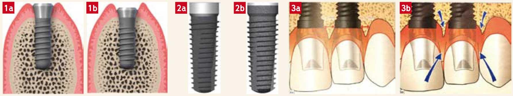 implant-en-un-temps