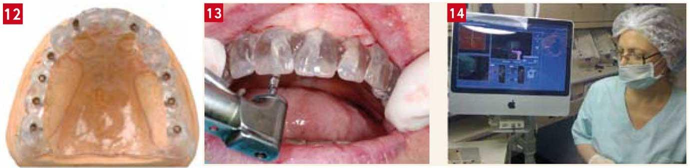 implants-sans-lambeaux-d'accès