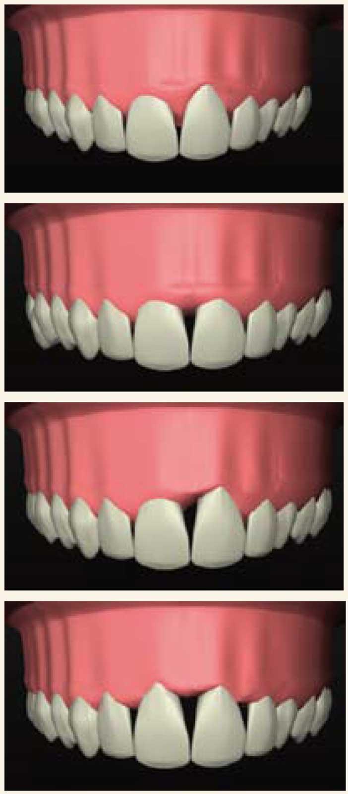 l'anatomie-des-dents