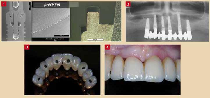 les-criteres-de-choix-d'un-bon-implant