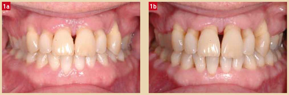 parodontite-agressive