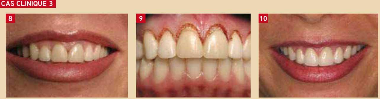 parodontologie-à-visée-esthétique