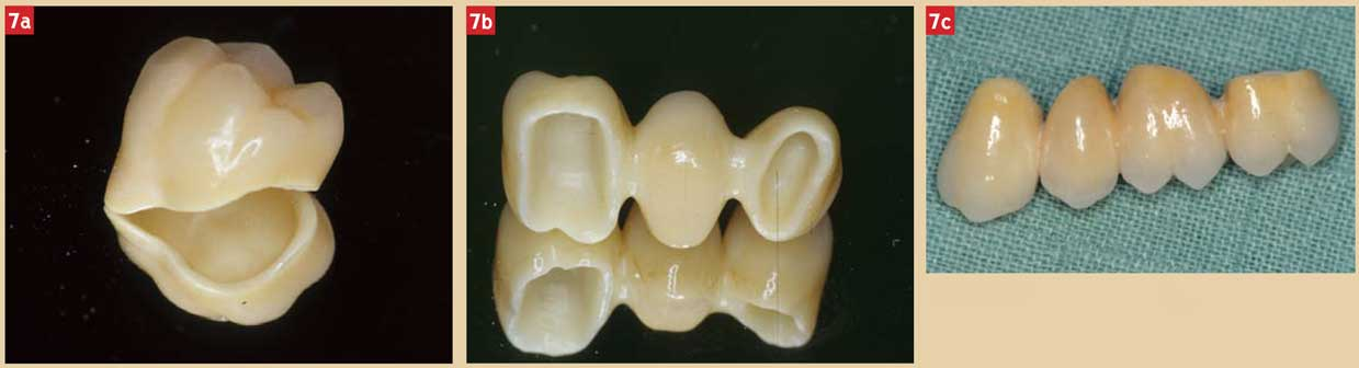 prothèses-fixées-avec-armature-zircone