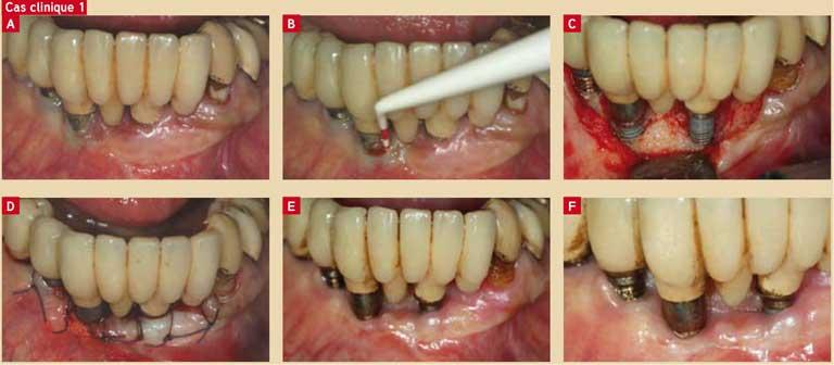 Traitement-d-une-péri-implantite