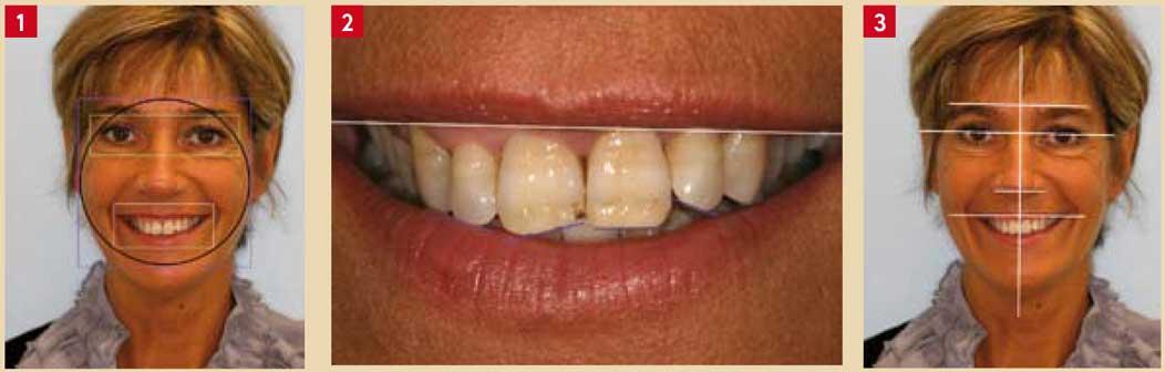 Caractéristiques-extra-orales