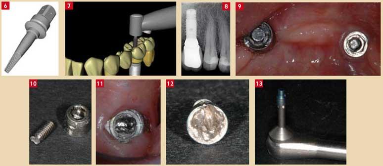 Complication-à-l'étage-implantiare