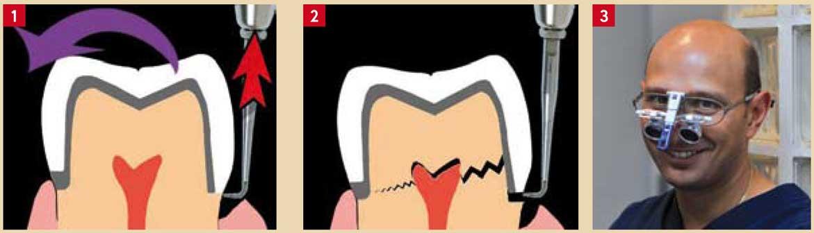 fracture-de-la-structure-résiduel
