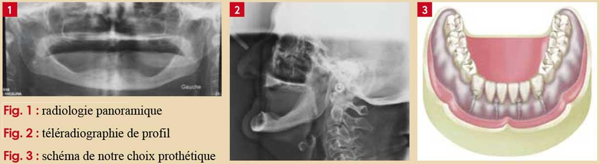 radiologie-panoramique