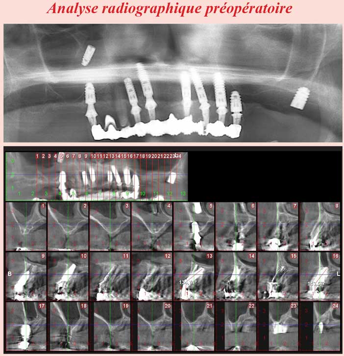 Analyse-radiographique-préopératoire