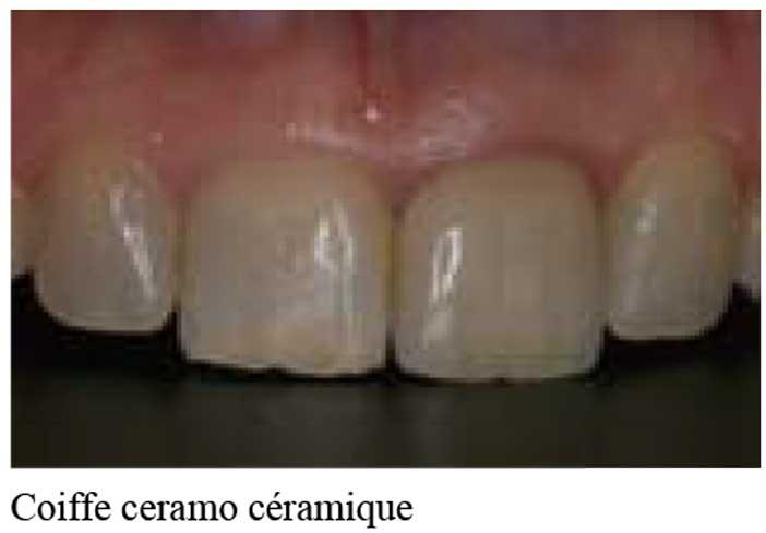 Coiffe-ceramo-céramique