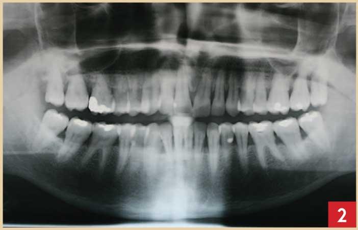 Examen-radiographique