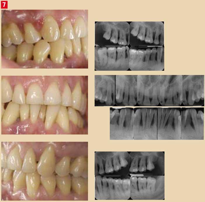 Parodontite-chronique-aggravée-par-le-tabac