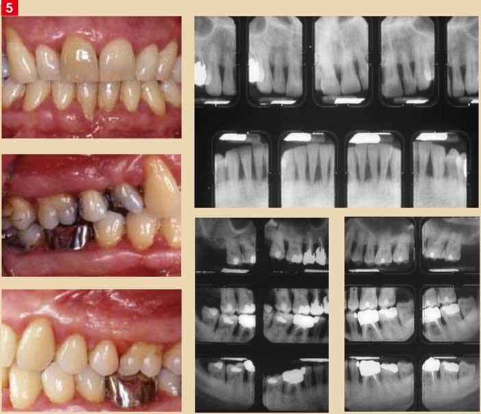 Parodontite-chronique