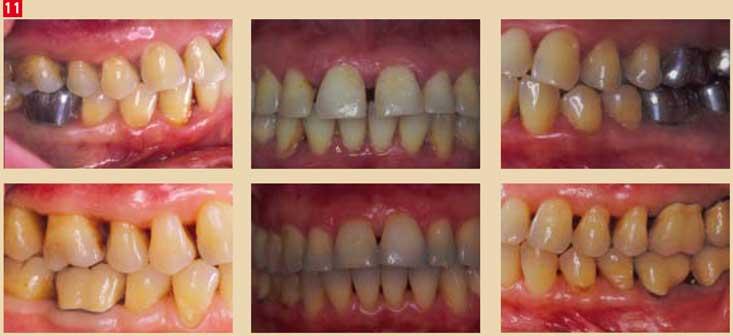 Traitement-d'une-parodontite-chronique