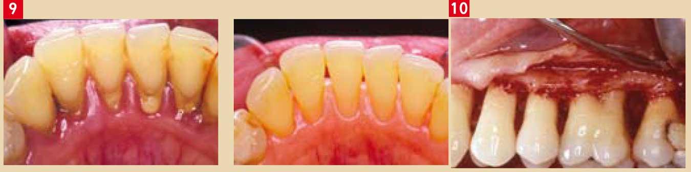 poches parodontales