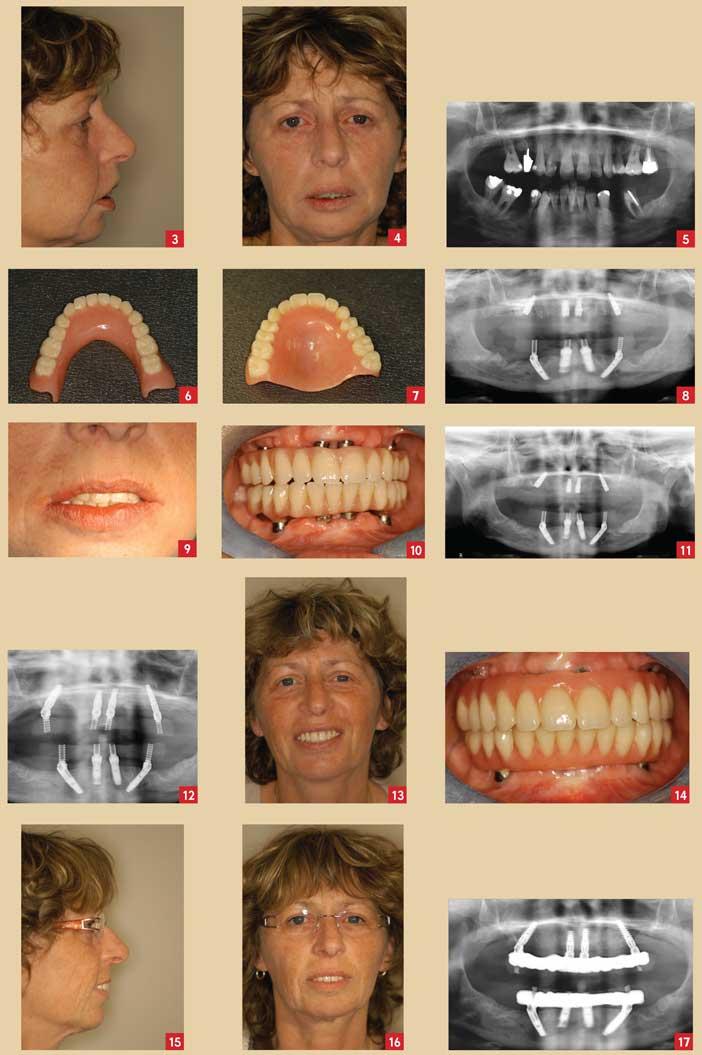 la-prothèse-maxillaire-amovible