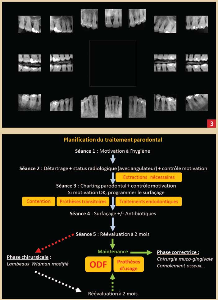 Diagnostic Et Plan De Traitement En Parodontologie