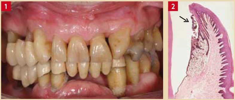 plaques-dentaires-supra