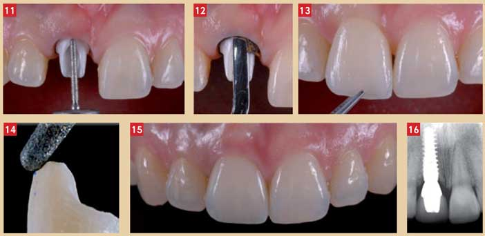 restaurations-implantaires-antérieures
