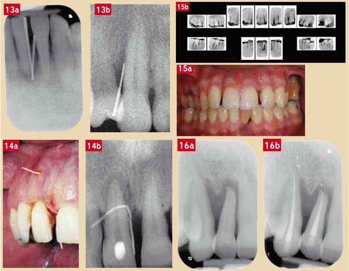 une-lésion-parodontale