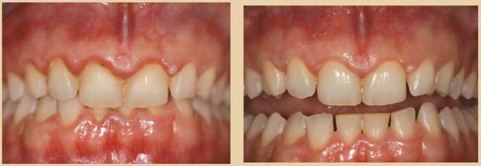 Contrôle-de-la-préparation-parodontale
