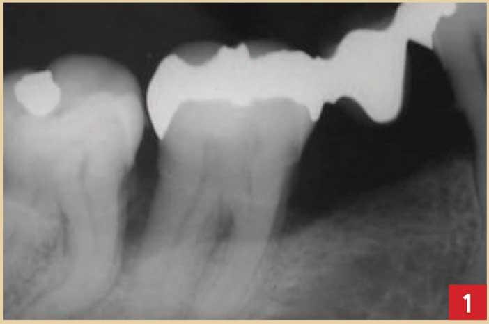 Influence-des-parodontites