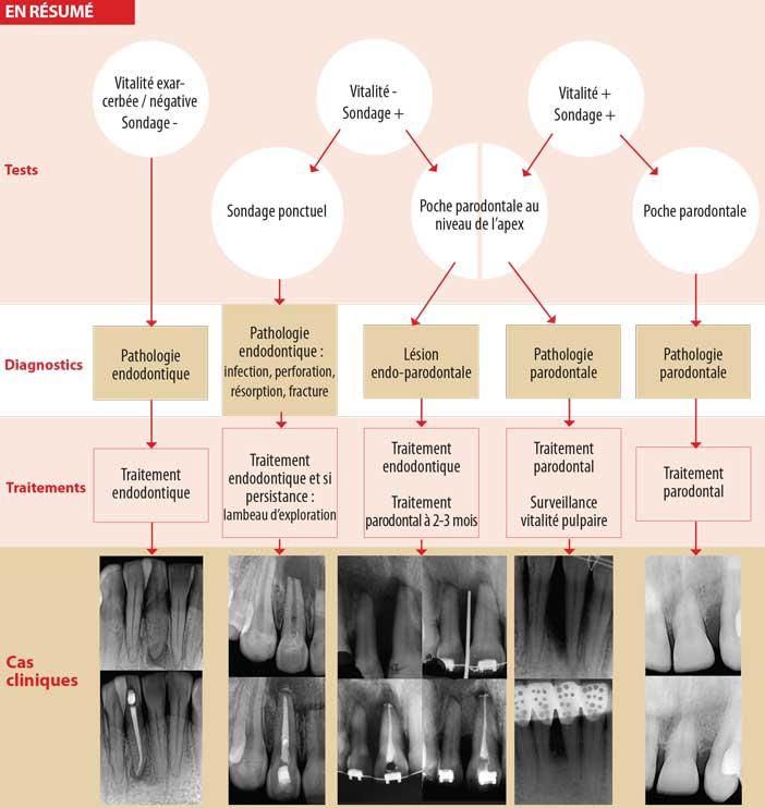 Lésion-parodontale-primaire