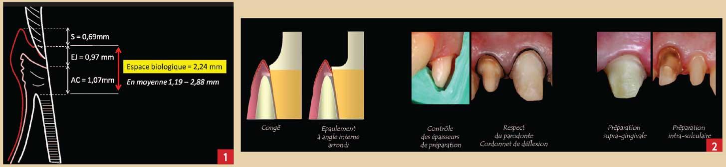 Les-différentes-formes-de-limites-cervicales