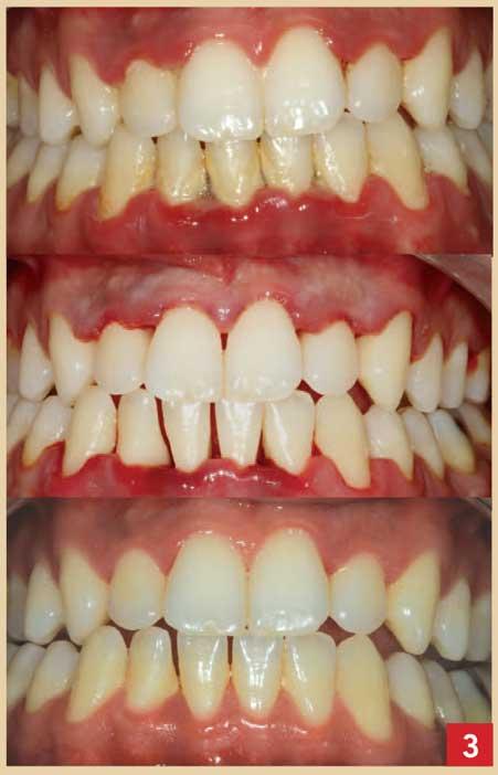 Mobilité-dentaire