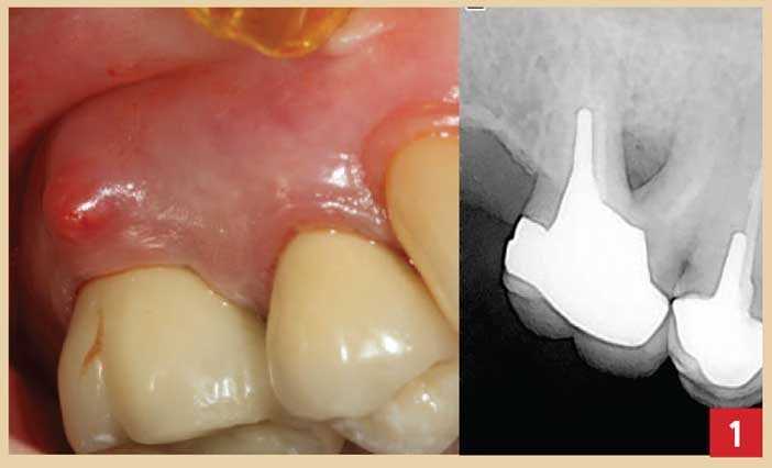 abcès-parodontal