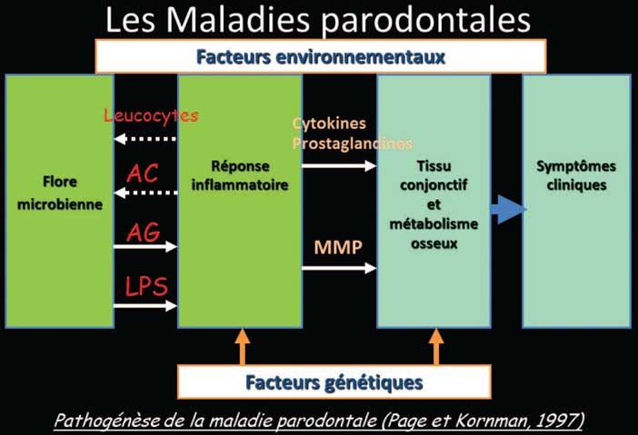 les-maladies-parodontaux