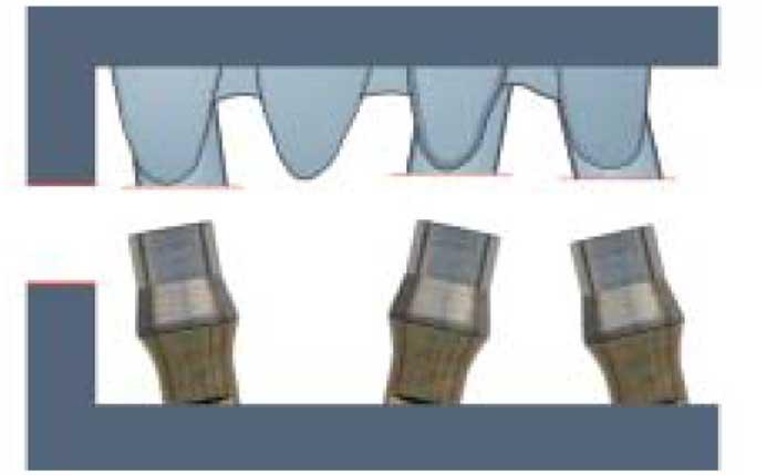 les-embases-prothétiques