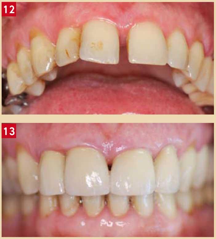 problèmes-parodontaux