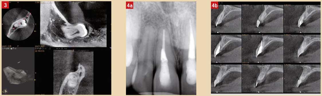 Chirurgie-orale-et-maxillofaciale
