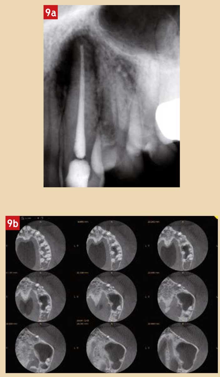 Dentisterie-médico-légale