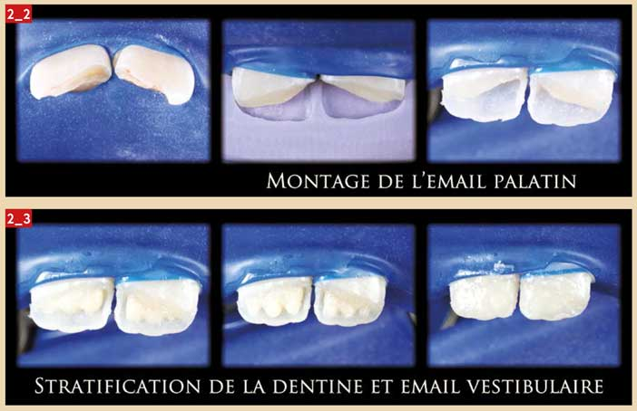 stratification-de-la-dentine