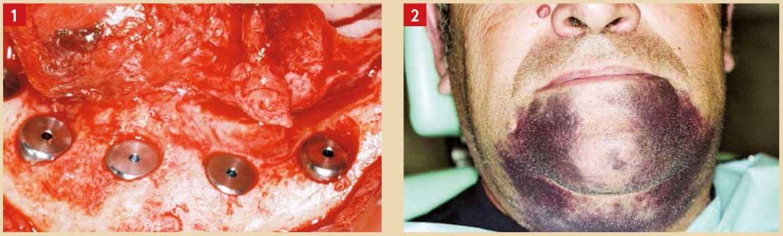 Cicatrisation-accélérée