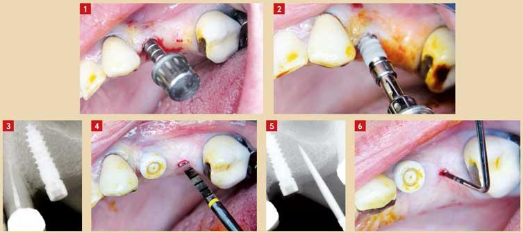 préparation-du-lit-implantaire