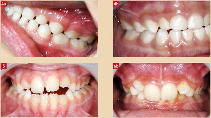 denture-temporaire