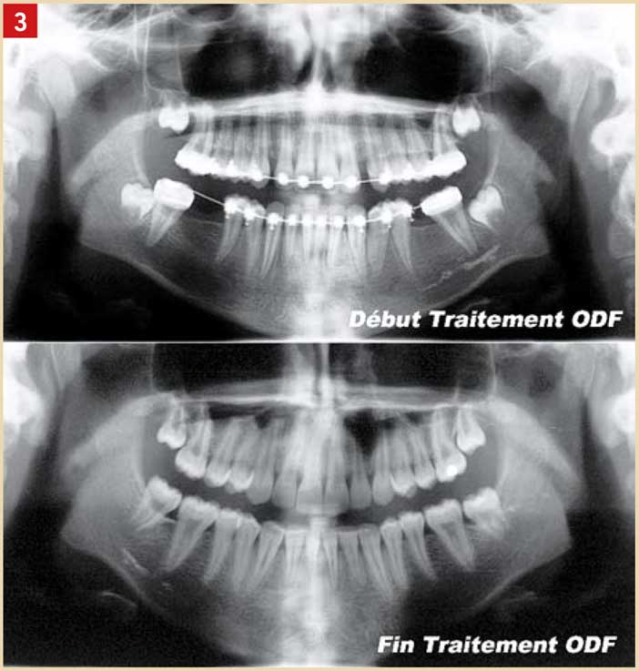 le-traitement-orthodontique