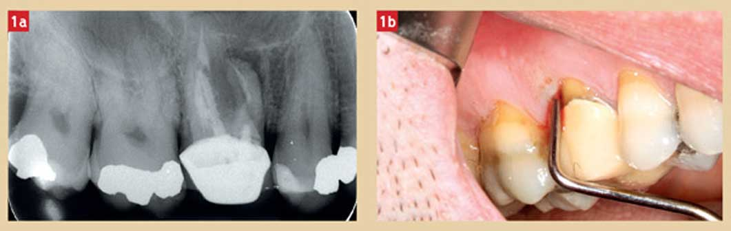 radiographie-dent-a-extraire