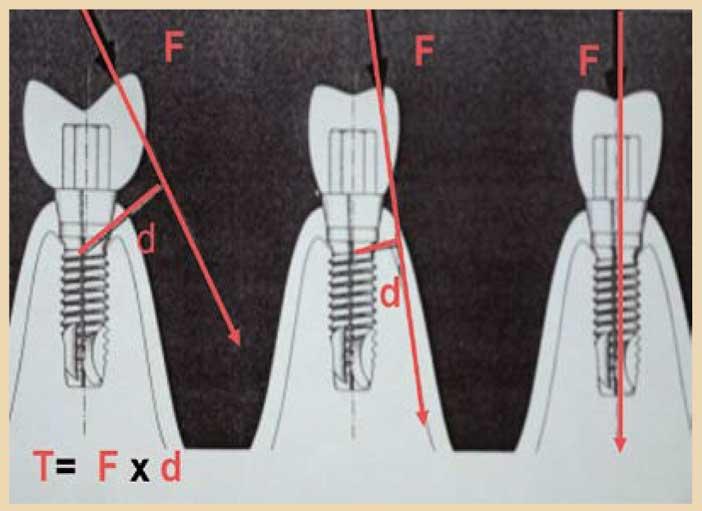 le-centre-de-gravité-de-l-implant