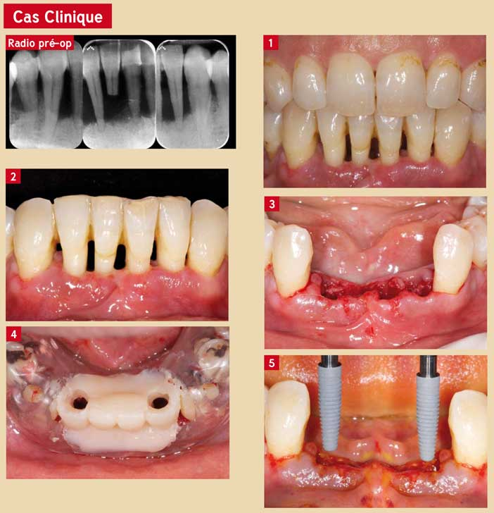 le-traitement-parodontal