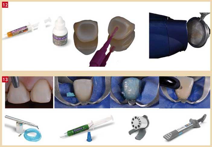 préparation-des-dents