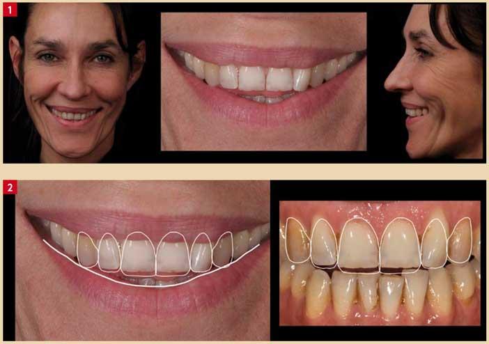 restauration-d'un-sourire
