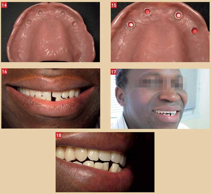 sourire-post-operatoire