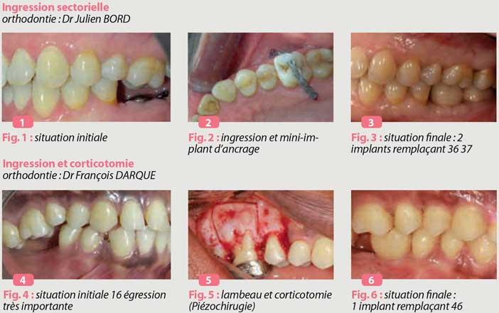 er-relations-parodontologie