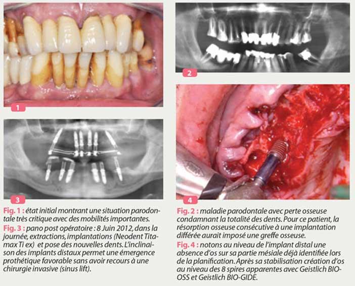 situation-parodontale-critique